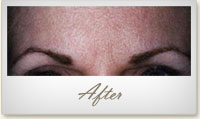 After BOTOX® treatment for frown lines