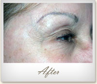After BOTOX® treatment for crow's feet