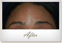 After BOTOX® treatment for forehead lines