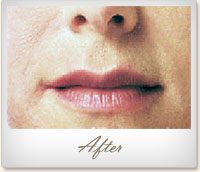 After Juvéderm® treatment