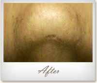 After laser hair removal on the chin