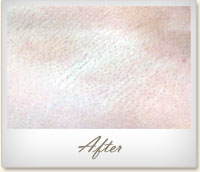 After laser hair removal on the underarm