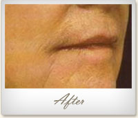 After treatment for wrinkles on the mouth and chin