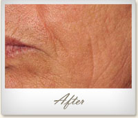 After treatment on facial wrinkles