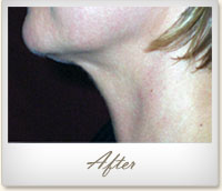 After Mesotherapy treatment on the chin