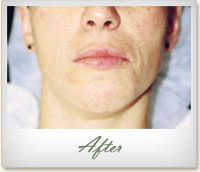 After Microdermabrasion treatment for acne