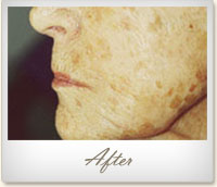 After Microdermabrasion treatment for age spots