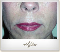 After Radiesse® treatment