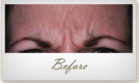 Before BOTOX® treatment for frown lines