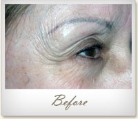 Before BOTOX® treatment for crow's feet