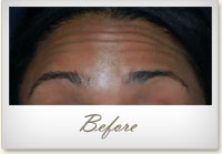 Before BOTOX® treatment for forehead lines