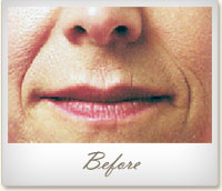 Before Juvéderm® treatment