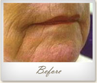 Before treatment for wrinkles on the mouth and chin