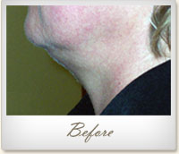 Before Mesotherapy treatment on the chin