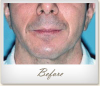 Before Radiesse® treatment
